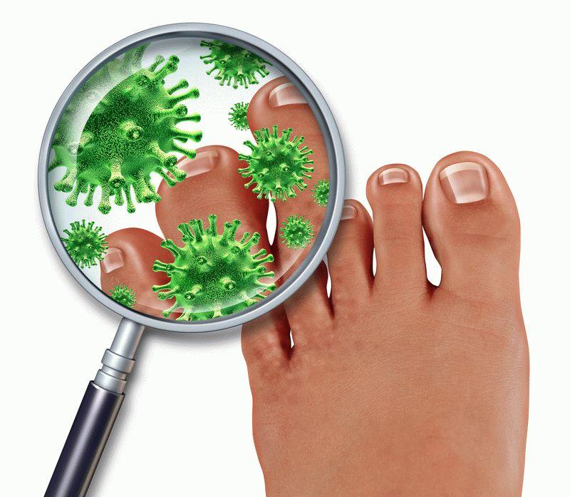 Hongo en los síntomas de las piernas. Se ve como un hongo en los pies